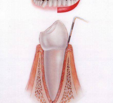 Zdrava dlesen Dlesen je zdrava, rožnata, brez oblog in krvavenja.