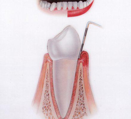 Vnetje dlesni (gingivitis) Dlesen je vneta, rdeča, krvavi ob ščetkanju - parodontoze še ni.