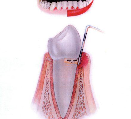 Začetna stopnja parodontoze Dlesen je vneta, rdeča, krvavi ob ščetkanju. Zobni kamen je pod nivojem dlesni. Parodontoza bo brez posredovanja napredovala.