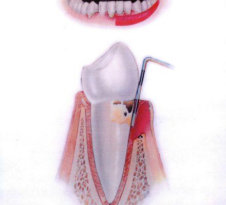 Napredovala stopnja parodontoze Dlesen je vneta, rdeča, krvavi. Zobni kamen je pod nivojem dlesni. Dlesen se skupaj s kostjo umika od oblog. Stanje se slabša.