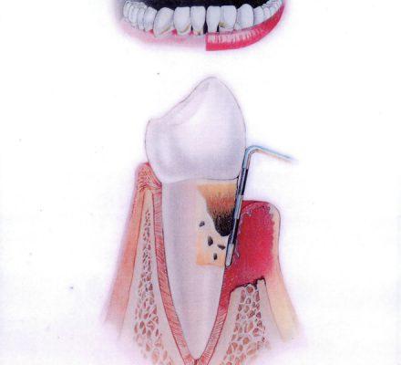 Končna stopnja parodontoze Dlesen je vneta, rdeča, krvavi. Zobni kamen je globoko pod nivojem dlesni. Izgubljene je veliko kosti. Zobje se majejo. Verjeten ustni zadah. V tej fazi je bolezen težko ustaviti.