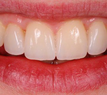 Zobne luske stanje po posegu